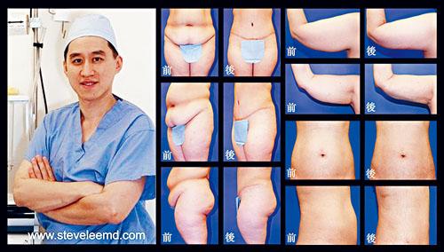 李致一醫生醫術精湛,專精各類大小美容整形手術,效果自然完美,深得客戶的信賴及推崇。