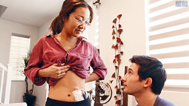 ■22歲亞裔女子韓麗接受由男友傑拉嘉華捐出的腎臟,手術順利,兩人現時正慢慢康復。dailymotion圖片