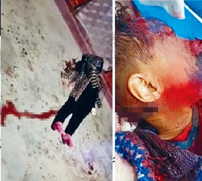 重大家庭慘劇釀5死傷,圖為一名遇難者。網上圖片