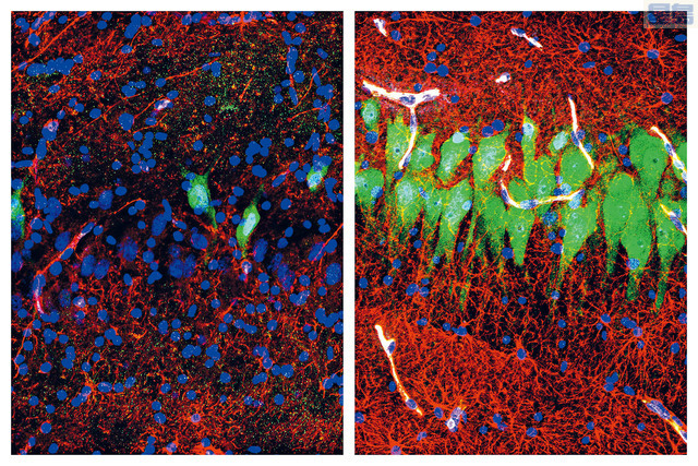 l 左圖顯示,模擬血液的物質輸入豬腦後,某個區域的細胞仍能維持結構完整,部分細胞功能得到恢復。右圖顯示,死後10小時未處理的豬腦細胞區域。    美聯社