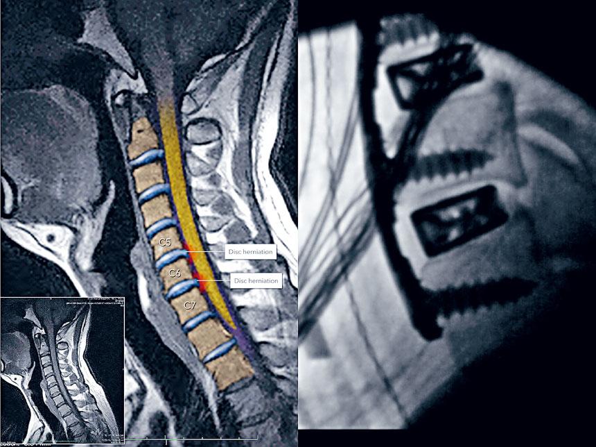 金約翰在接受頸椎融合術前後的對比圖。黎保利律師事務所提供