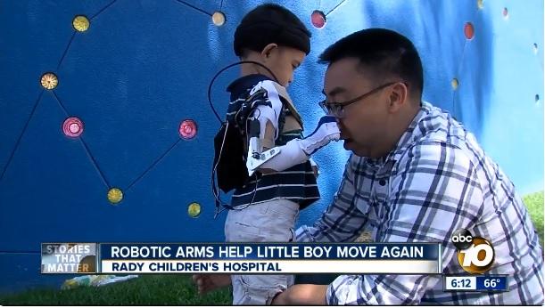 罹患罕病的五歲華裔童Max Ng,穿戴上聖地牙哥加大學生設計的電動輔具得以舉起手 捏捏父親Teg Ng的鼻子。abc 10 News