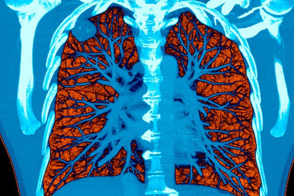 人工智能可早期診斷肺癌和胰腺癌,用於斷層掃描之中。abc 7