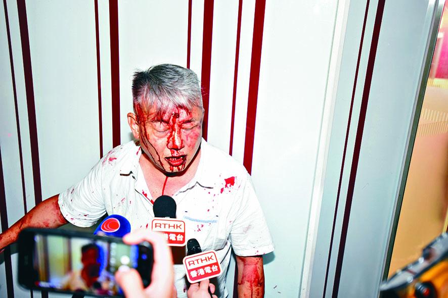 姚姓男子遭打至血流披面。