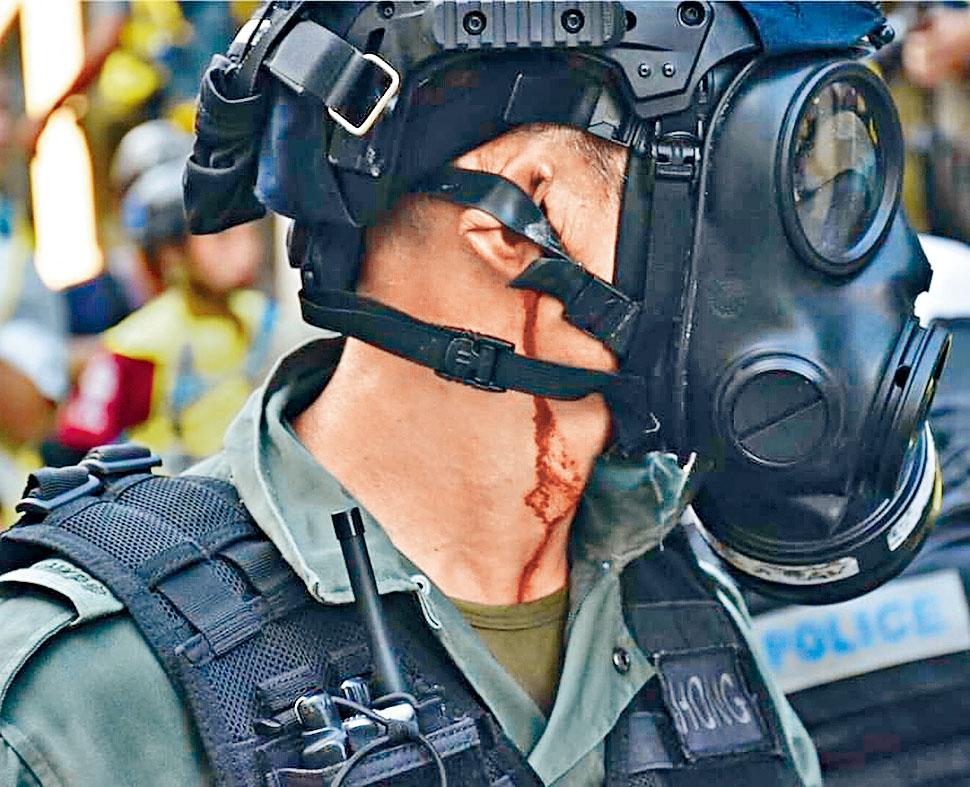 防暴警遇襲,耳部受傷流血。