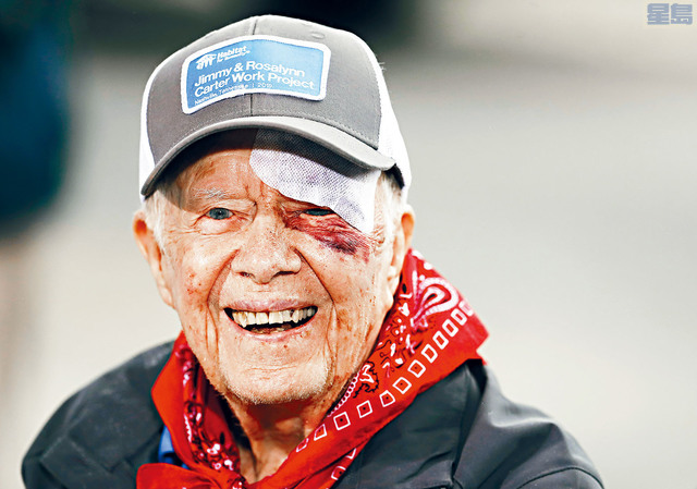 卡特在月初時已曾在家中摔倒,眉上縫了14針。 資料圖片