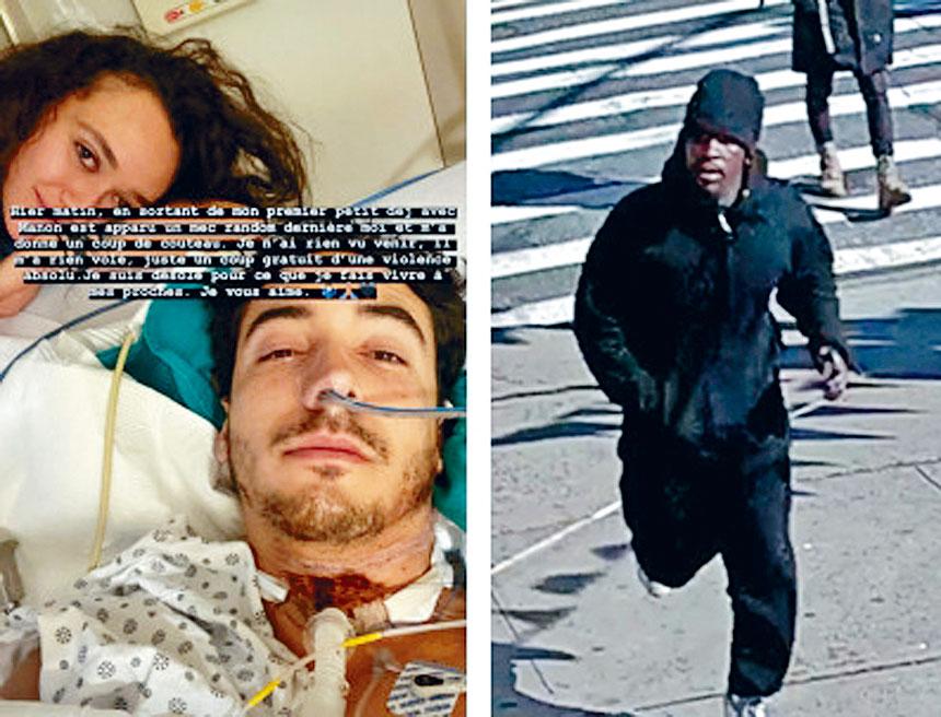 (左圖)巴斯科被割開喉嚨,目前仍不能說話;(右圖)警方發布疑犯照片。 Instagram及DCPI圖片