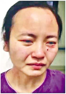 ■廣州一名女護士被外籍患者咬傷。 網絡圖片