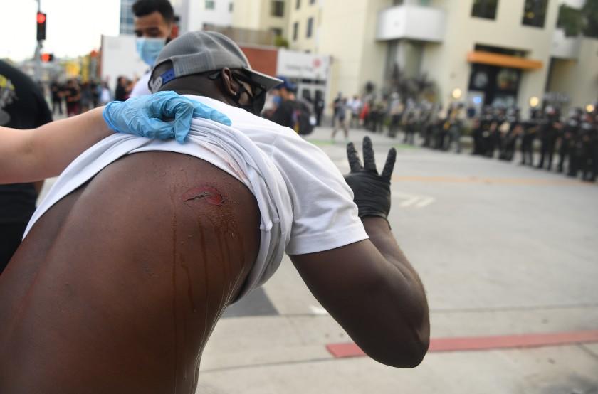 聖塔莫妮卡一名示威者被橡膠子彈擊中,正在接受治療。洛杉磯時報
