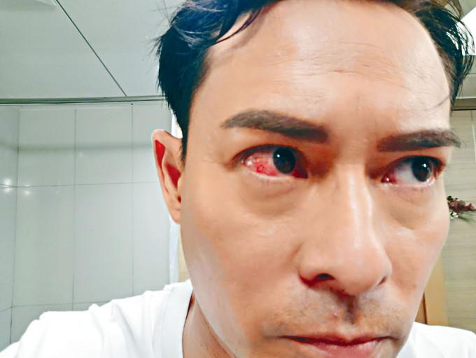 左眼角被打爆,即變眼睛通紅。