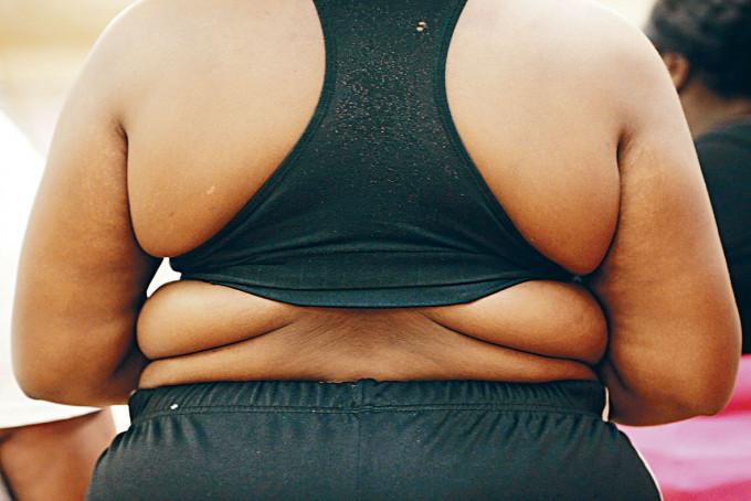 紐約一個真人騷節目,有肥胖的參賽者欲靠跳舞來減肥。