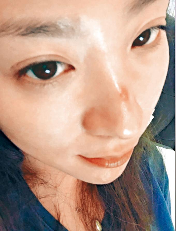 岑寧童貼出鼻頭爆瘡相。
