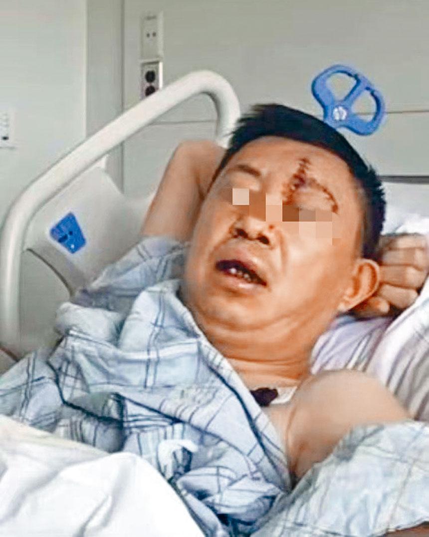 鄭先生自稱在法拉盛街頭遭遇陌生男子襲擊,臉被劃傷。家屬提供