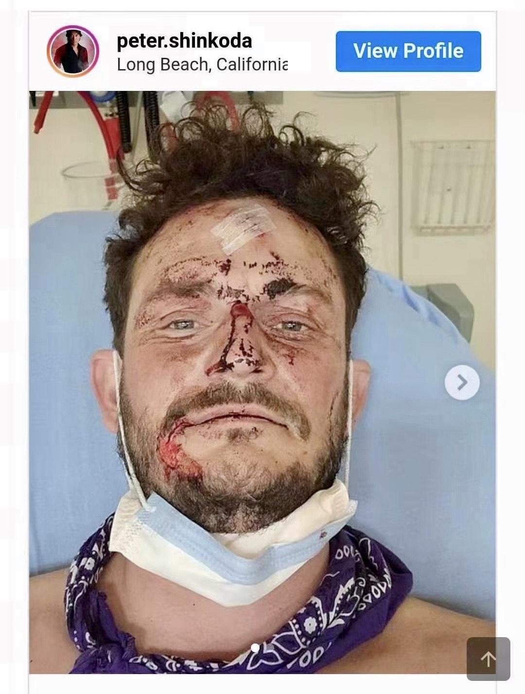 受傷接受治療的Brant Carnwath。彼得新田的Instagram截屏