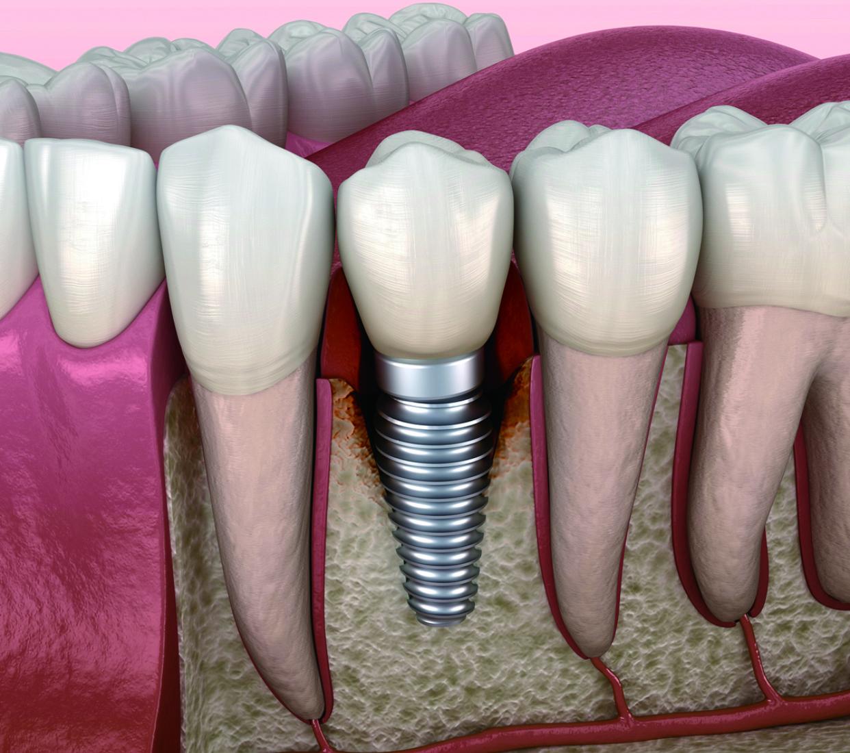 物超所值??心動價植牙 種植體+基台+牙冠   植牙技術已趨成熟,價格合理低廉,現在植牙是最佳時候! 可以單顆或多顆牙齒植入,手術安全舒適,完成後感覺就像天然牙齒一樣。