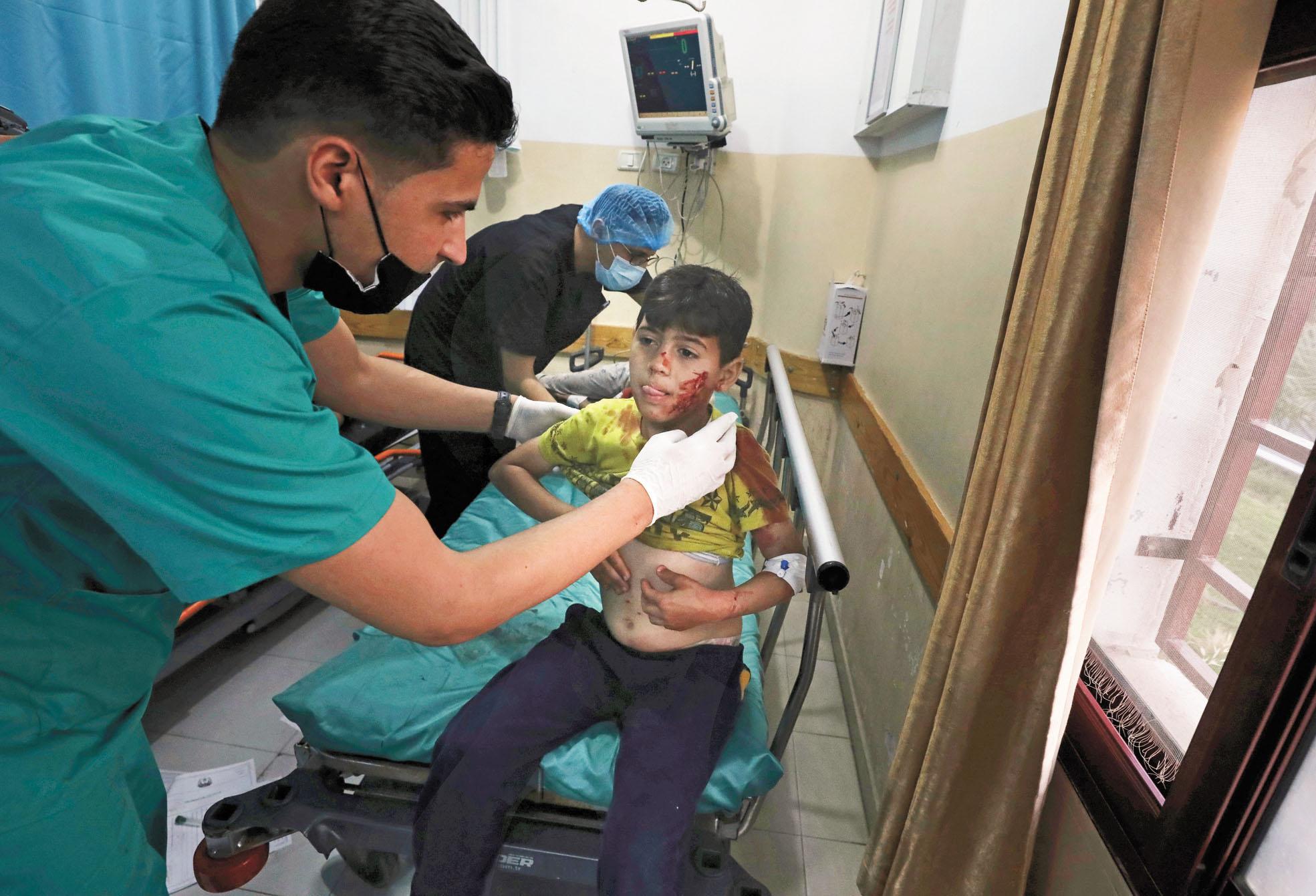 加沙地帶北部發生爆炸,醫務人員正在治療一名受傷的男孩。美聯社
