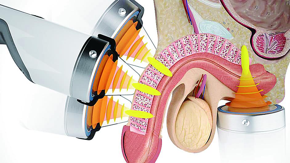 採用超聲波治療男性勃起功能障礙。